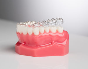Clear Active Aligner